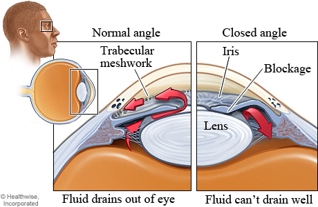 Angle Closure Glaucoma